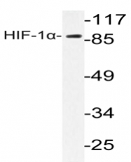 AP20633PU-N - HIF1A / HIF1 alpha