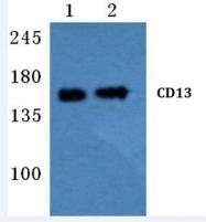 AP20647PU-N - CD13