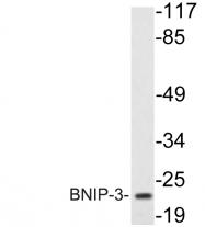 AP20658PU-N - NIP3