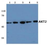 AP20689PU-N - AKT2 / PKB beta