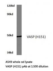 AP20691PU-N - VASP