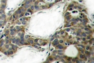 AP20705PU-N - Catenin beta-1