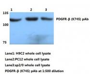 AP20718PU-N - CD140b / PDGFRB