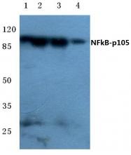 AP20731PU-N - NF-kB p105 / p50