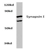 AP20761PU-N - Synapsin-1