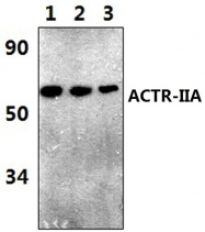 AP20763PU-N - Activin receptor type 2A / ACVR2A