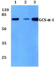 AP20764PU-N - Guanylate cyclase soluble GUCY1A3