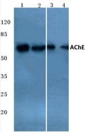 AP20787PU-N - Acetylcholinesterase