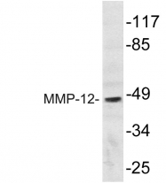 AP20790PU-N - MMP-12