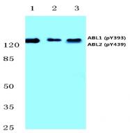 AP20818PU-N - ABL1 / ABL2