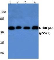 AP20825PU-N - RELA / NF-kB p65