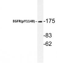 AP20828PU-N - EGFR / ERBB1