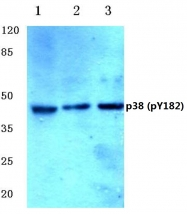 AP20851PU-N - MAP kinase p38