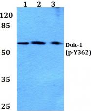 AP20860PU-N - DOK1 / p62 dok
