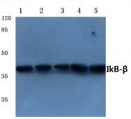 AP21089PU-N - NFKBIB / IKBB