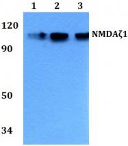 AP21091PU-N - NMDA Receptor 1