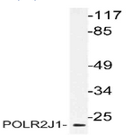 AP21166PU-N - POLR2J