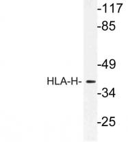 AP21189PU-N - HFE / HLAH