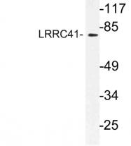AP21191PU-N - LRRC41