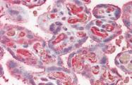 AP21233AF-N - Ceruloplasmin