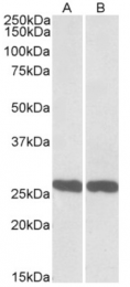 AP21292PU-N - UCHL1 / PGP9.5