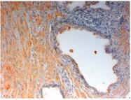 AP22376PU-N - Oxytocin receptor / OXTR