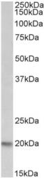 AP22385PU-N - PSMB9