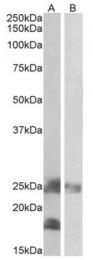 AP22426PU-N - Dynactin subunit 3