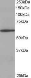 AP22532PU-N - Coronin-1A