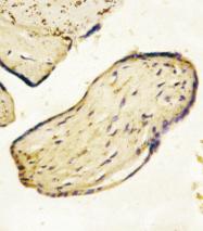 AP22774PU-N - CD73
