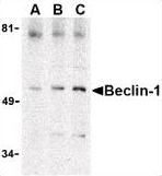 AP22863PU-N - Beclin-1