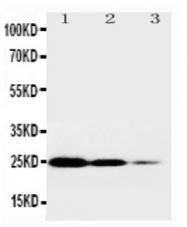 AP23346PU-N - CD120a / TNFR1