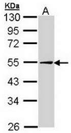 AP23618PU-N - Adipophilin / ADFP