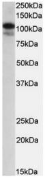 AP23696PU-N - SATB1