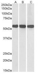 AP23724PU-N - Glutamate dehydrogenase 1