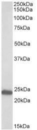 AP23748PU-N - GM2A / SAP3