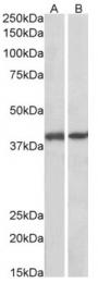 AP23750PU-N - G protein alpha Q / GNAQ
