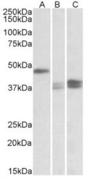 AP23763PU-N - TXNDC5 / TLP46