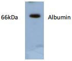 AP26411AF-N - Albumin
