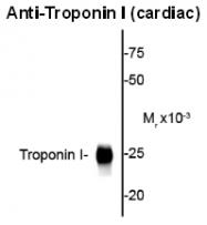 AP26440SU-N - Cardiac Troponin I