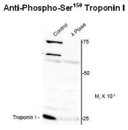 AP26441PU-N - Cardiac Troponin I