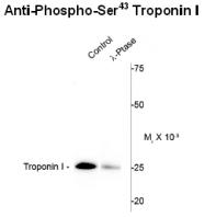 AP26443PU-N - Cardiac Troponin I