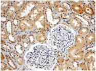 AP31060PU-N - ATPase WRNIP1
