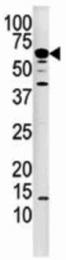 AP31352PU-N - PPP3CA / Calcineurin A