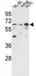 AP31353PU-N - PPP3CC / CALNA3