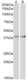 AP31421PU-N - Isocitric dehydrogenase beta / IDH3B