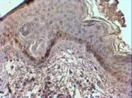 AP31562PU-N - Mast Cell Chymase