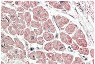 AP31699PU-N - Atrial Natriuretic Factor (ANF)