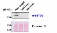 AP31865PU-N - SETD2 / HIF1