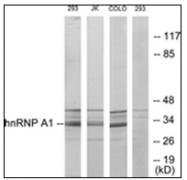 AP31870PU-N - hnRNP core protein A1 / HNRNPA1
